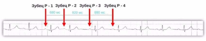 как выглядит синусовая аритмия на ЭКГ