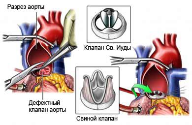 хирургическое лечение аортального клапана