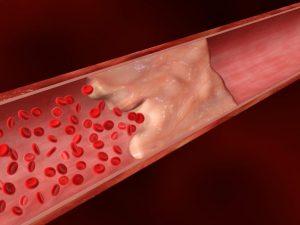 жировая эмболия после операции
