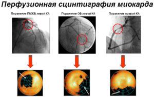 диагностика сердечной патологии