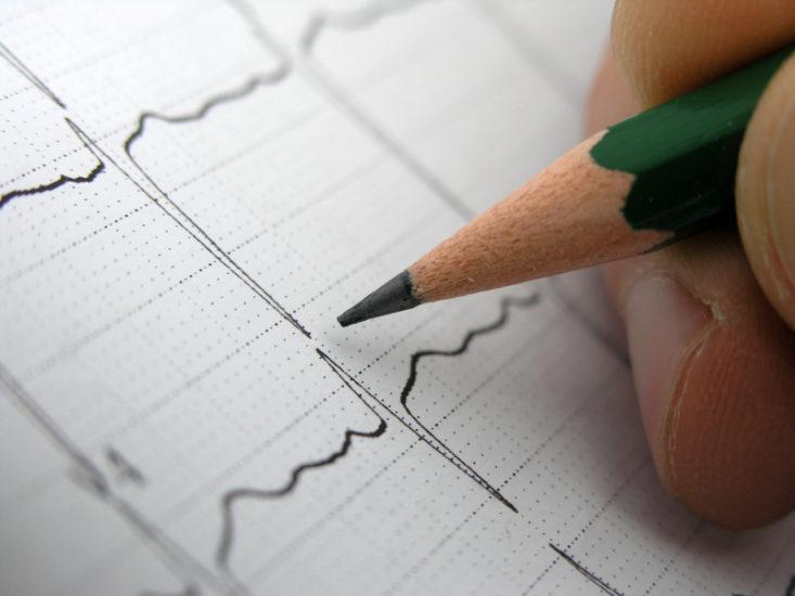 причины и симптомы синоаурикулярной блокады