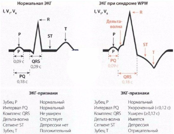 диагностика WPW синдрома