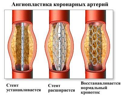 лечение коронарных артерий