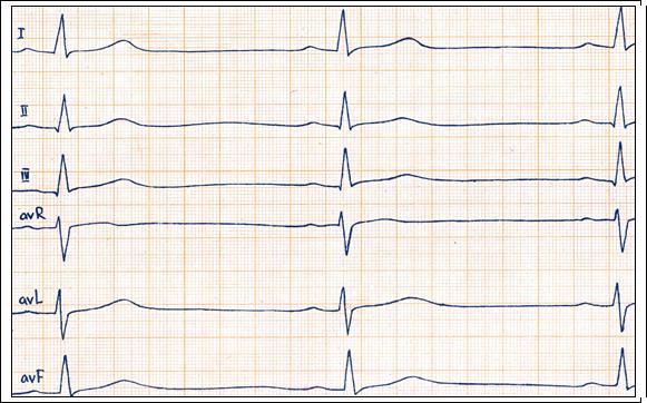 ЭКГ признаки синусовой брадикардии