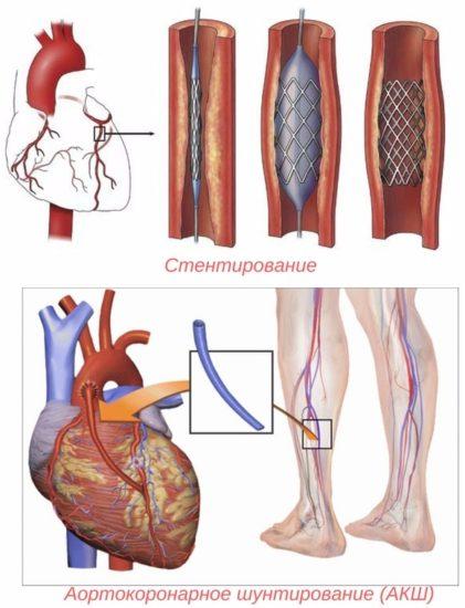 стентирование и аортокоронарное шунтирование