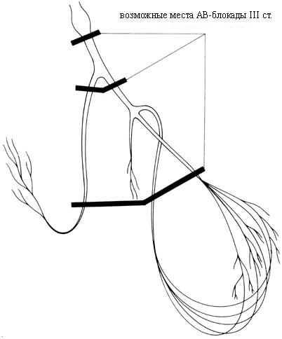 механизм развития АВ блокады 3 степени