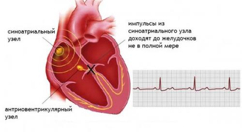 неполное прекращение проведения электрических импульсов по сердцу
