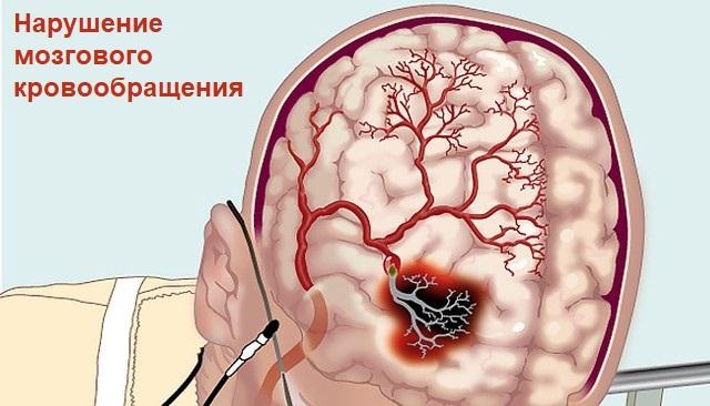 Нарушение мозгового кровообращения при установке кардиостимулятора