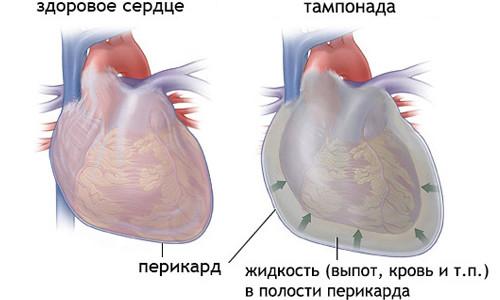 осложнения после абляции сердца