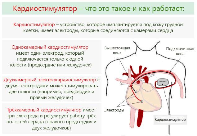 Виды кардиостимуляторов