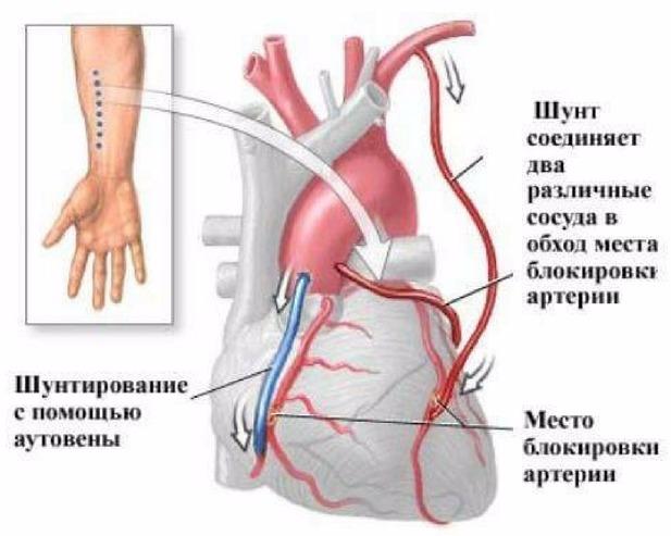 операция при сердечной недостаточности