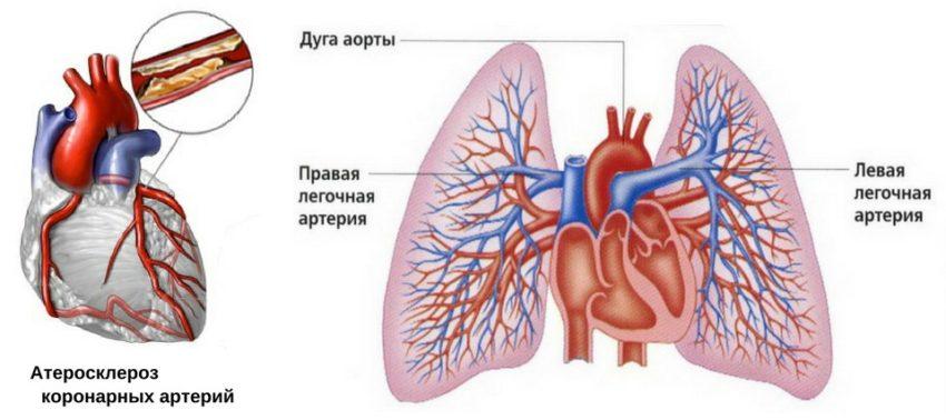 механизм развития одышки при атеросклерозе