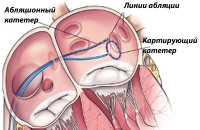 хирургическое лечение трепетаний предсердия