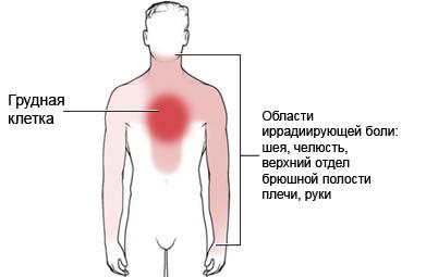 куда отдает боль при стенокардии