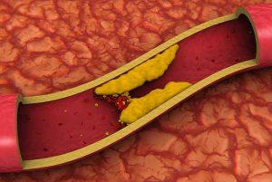 классы стенокардии напряжения