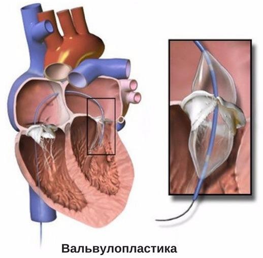 хирургическое лечение митрального клапана