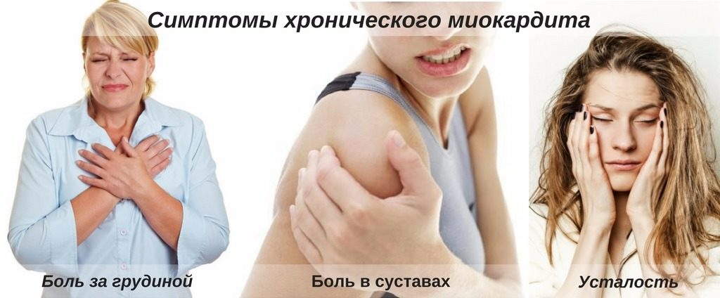 проявления заболевания