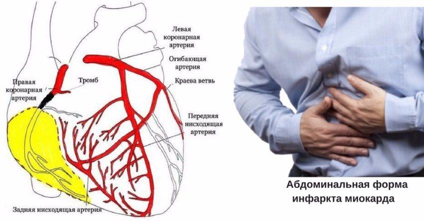 локализация боли при ИМ