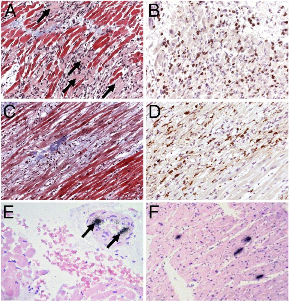 этапы повреждения миокарда при вирусном миокардите