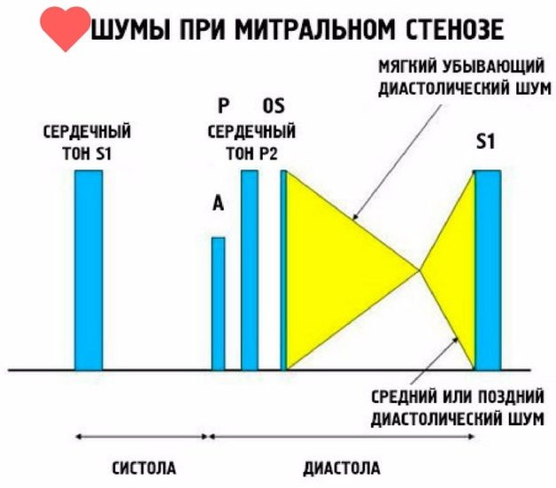 методы диагностики пороков сердца