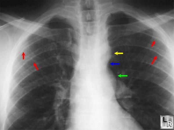 диагностика коарктации аорты