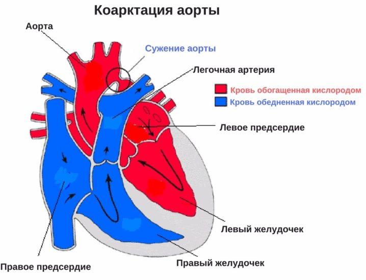 осложнения коарктации аорты