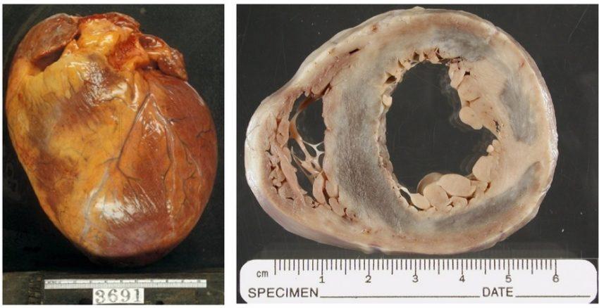 этапы развития вирусного миокардита