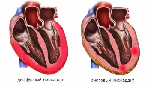 миокардит на ЭКГ