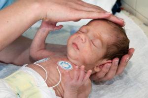 симптомы коарктации аорты у новорожденного
