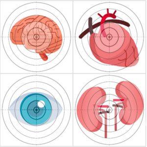 органы мишини при гипертонии