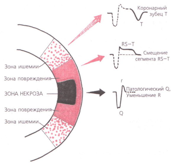 увеличение зоны некроза