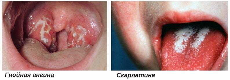 этиология миокардита