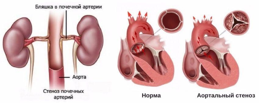 основные заболевания, при которых эналаприл не следует назначать