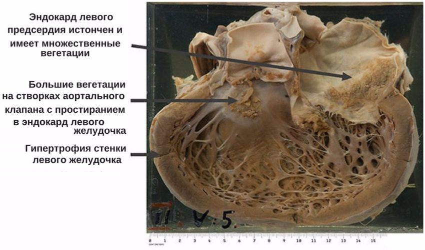 патологическая анатомия ревматического сердца