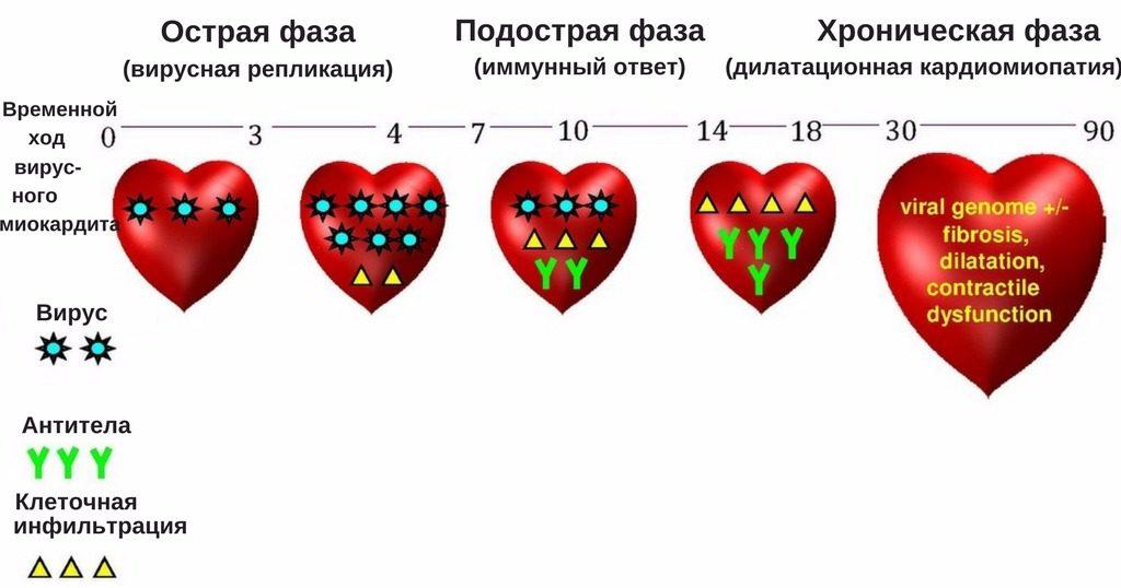 фазы воспалительного процесса в миокарде