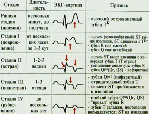 ЭКГ признаки инфаркта миокарда