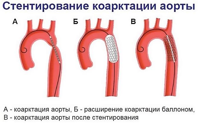 стентирование при коартации аорты