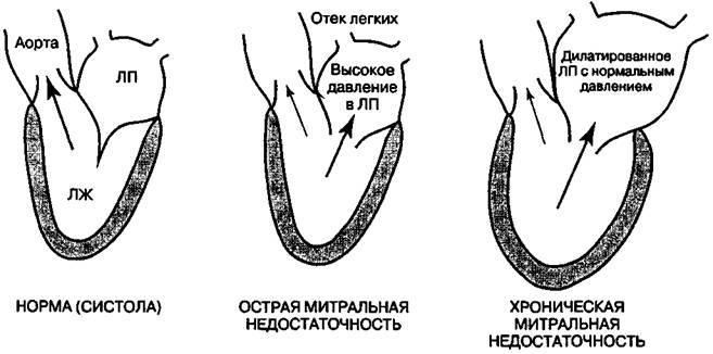 гемодинамические расстройства