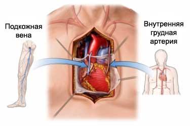 техника проведения аортокоронарного шунтирования