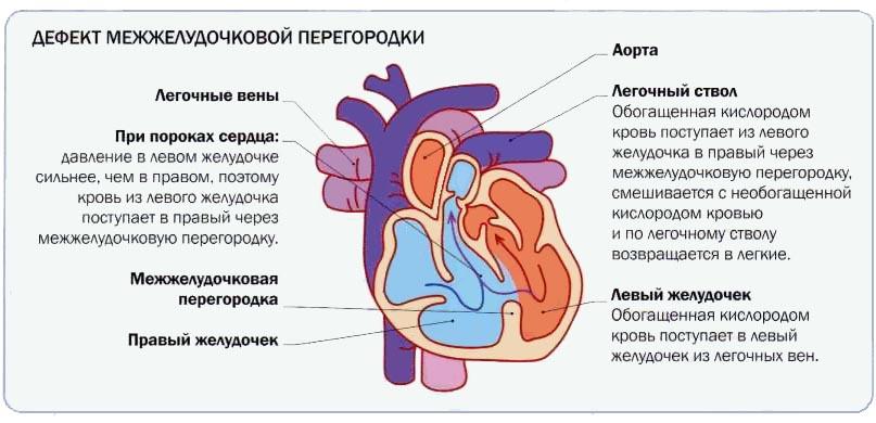 ГЕМОДИНАМИКА ПРИ ДМЖП