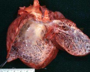 симптомы и лечение дилатационной кардиомиопатии