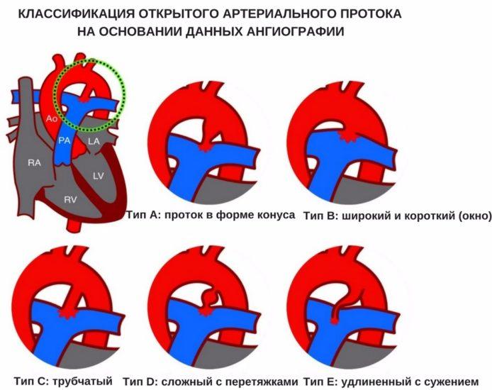Открытый артериальный проток: гемодинамика, признаки, шумы при ...