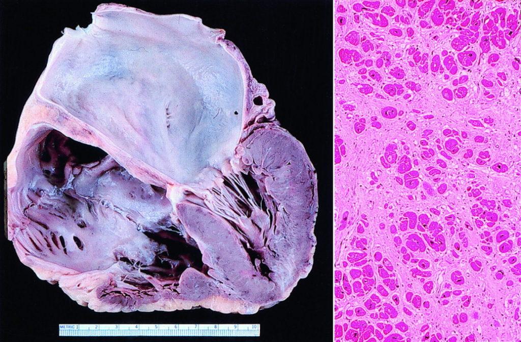 Патогенез рестриктивной кардиомиопатии