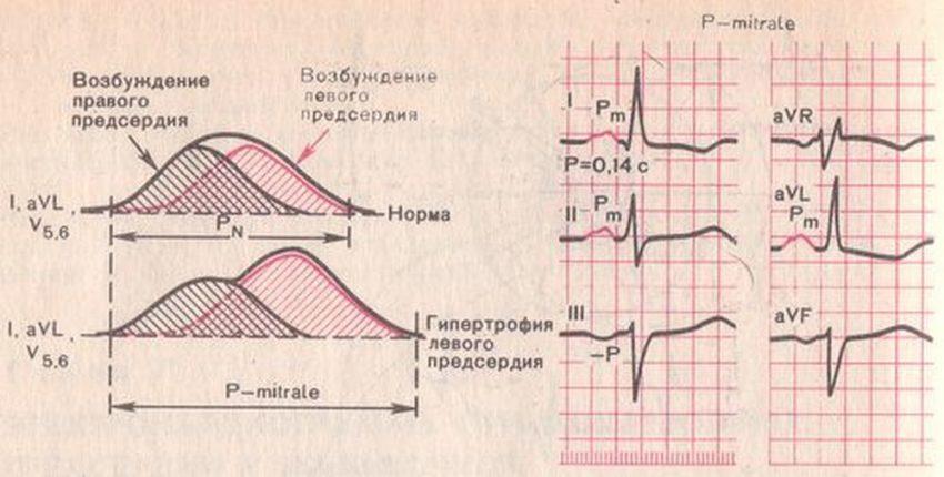 диагностика гипертрофии сердца