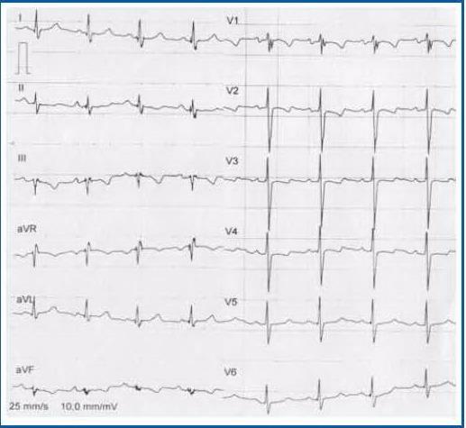 диагностика гормональной кардиомиопатии