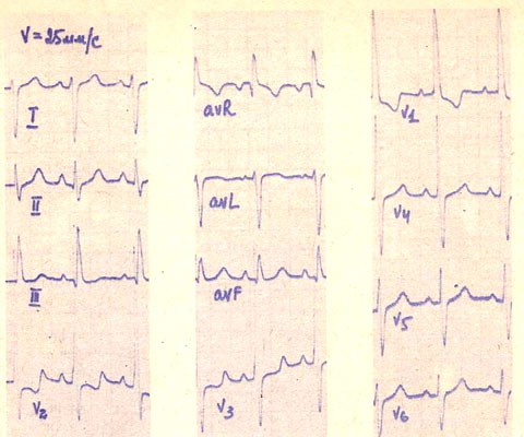 диагностика тетрады фалло