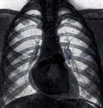 диагностика пороков сердца
