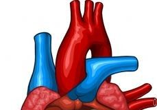 симптомы и лечение дисплазии правого желудочка