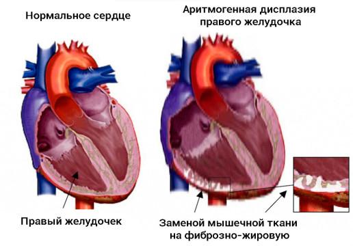 причины и симптомы дисплазии правого желудочка