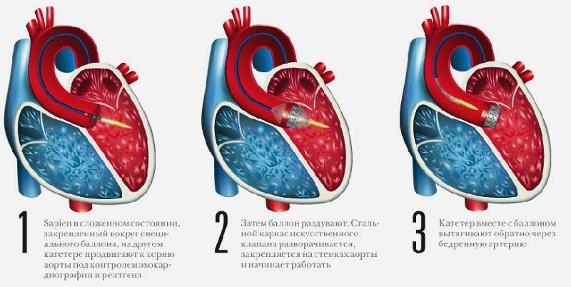 оперативное лечение аортального порока